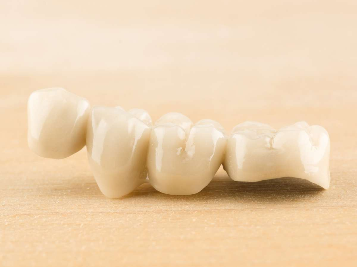 Emergency dentistry Buchanan Dental Arts - Lost or broken crown or bridge