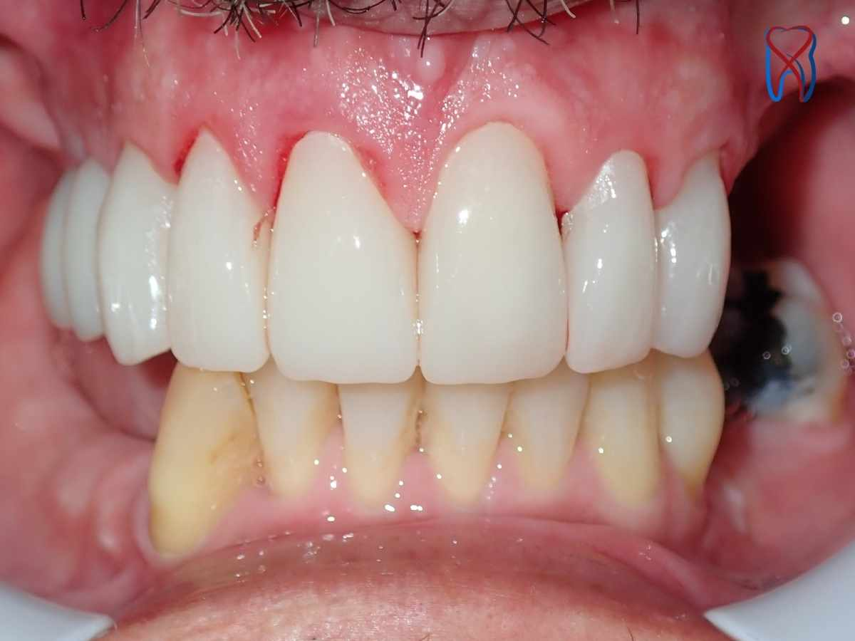 After Buchanan Dental Arts Case 3