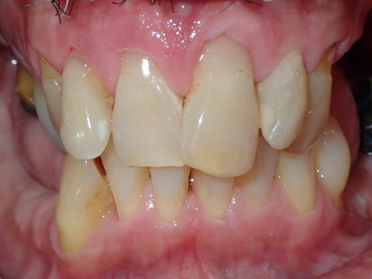 Before Buchanan Dental Arts Case 3