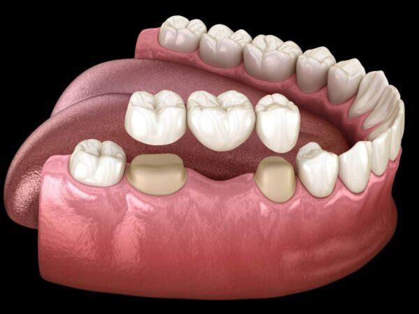 Family Dentistry - Dental Bridges Buchanan Dental Arts