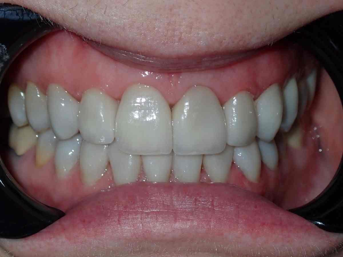 After Veeners at Buchanan Dental Arts