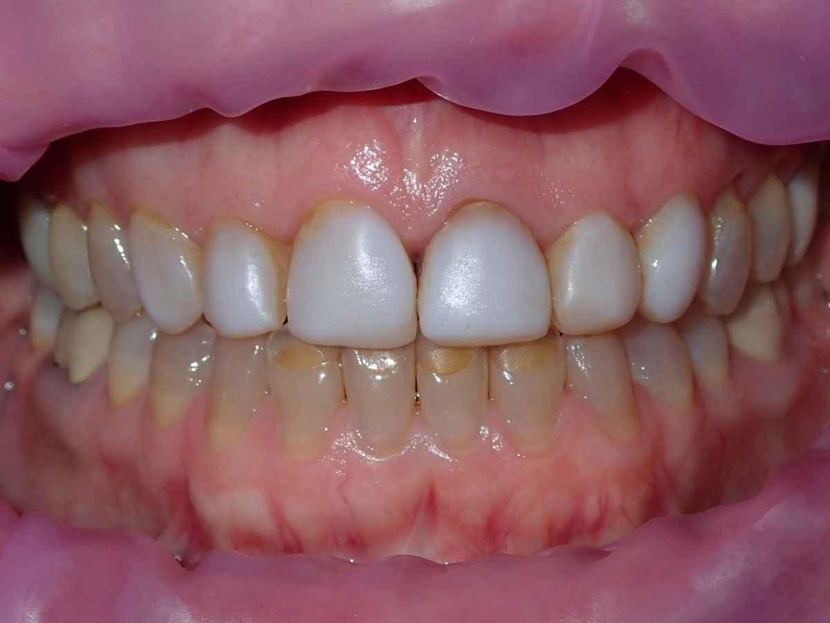 Before Veeners at Buchanan Dental Arts